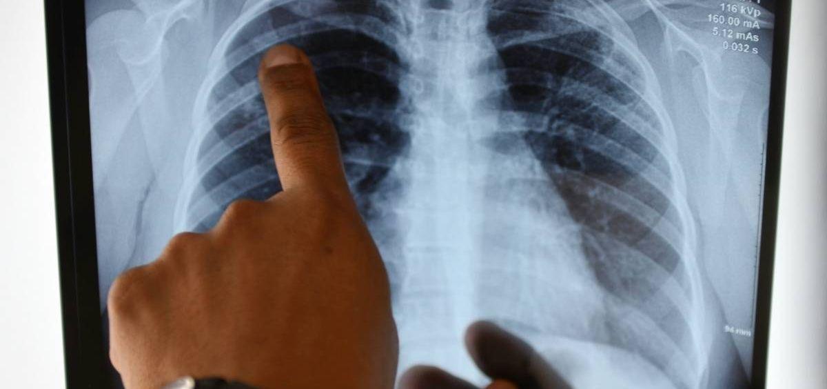 Un nuevo sistema diagnostica con más precisión las enfermedades respiratorias crónicas
