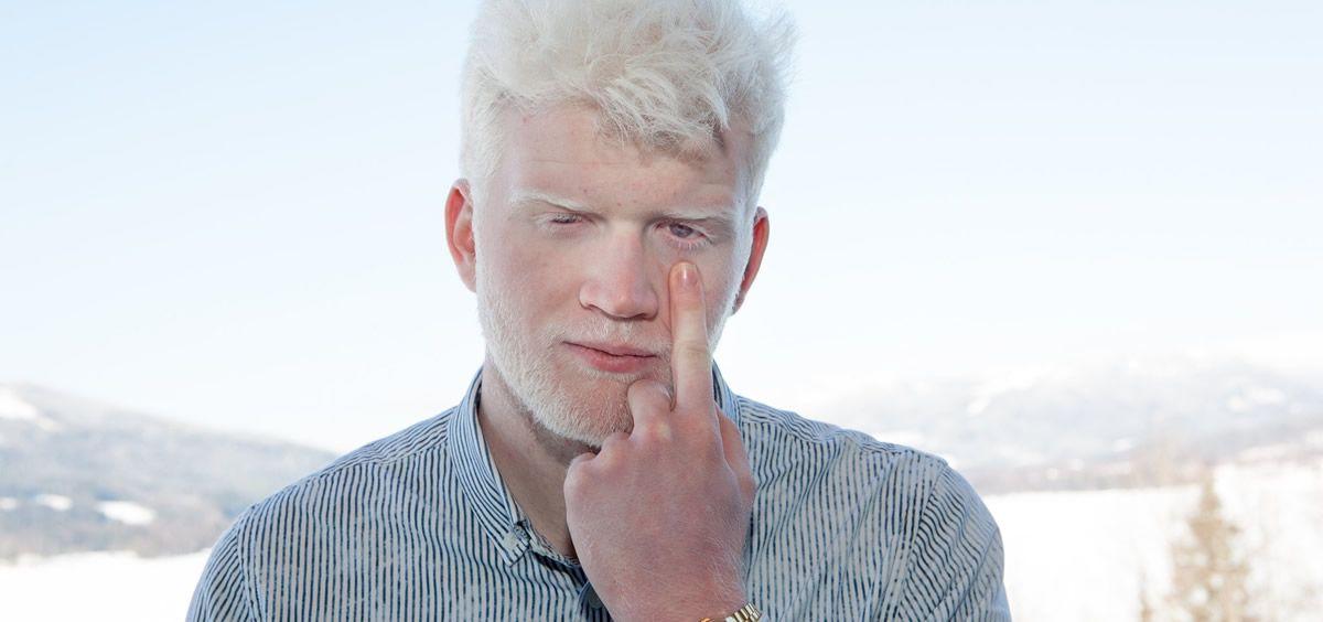 El lema del Día Internacional de Concienciación del Albinismo es #ILookOutForAlbinsm