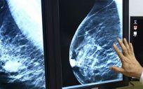 El cáncer de mama suma 32.825 nuevos casos en España en lo que va de año