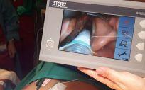 Tener monitorizado el nervio laríngeo en la cirugía de tiroides aporta seguridad y previene lesiones