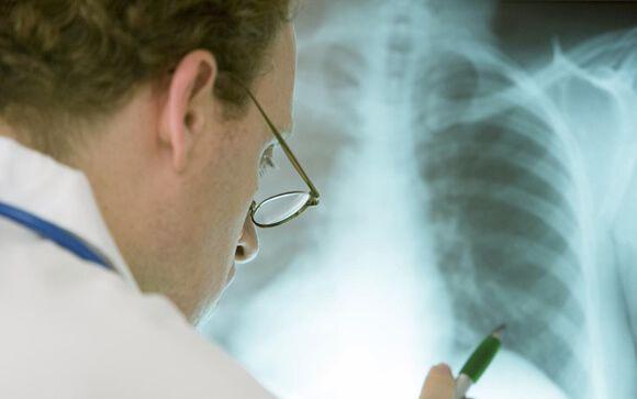 Hacia una mayor personalización del tratamiento de la EPOC y la fibrosis pulmonar