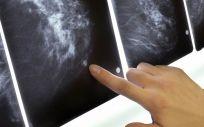 La mujer con cáncer de mama murió tras seguir una pseudoterapia