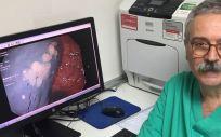 El jefe de Servicio de Medicina del Aparato Digestivo, doctor Sarbelio Rodríguez
