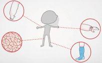 La Fisioterapia, clave contra el linfedema
