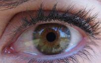 La uveítis es la inflamación de la úvea o capa media del ojo, formada por el iris, el cuerpo ciliar y las coroides.