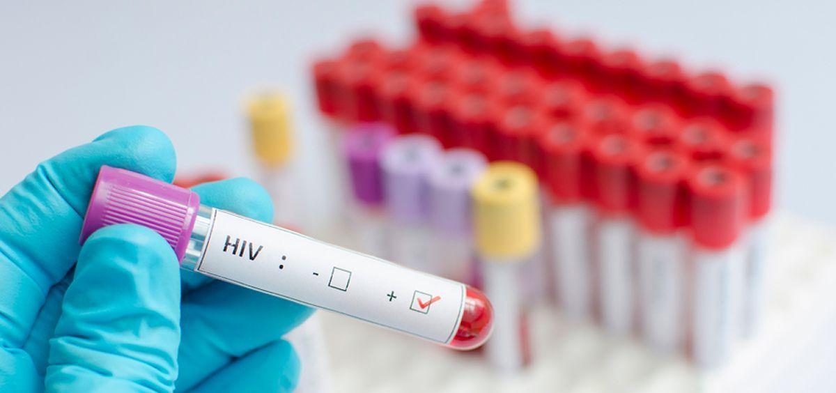 Nueve de cada 10.000 personas en China padecen VIH