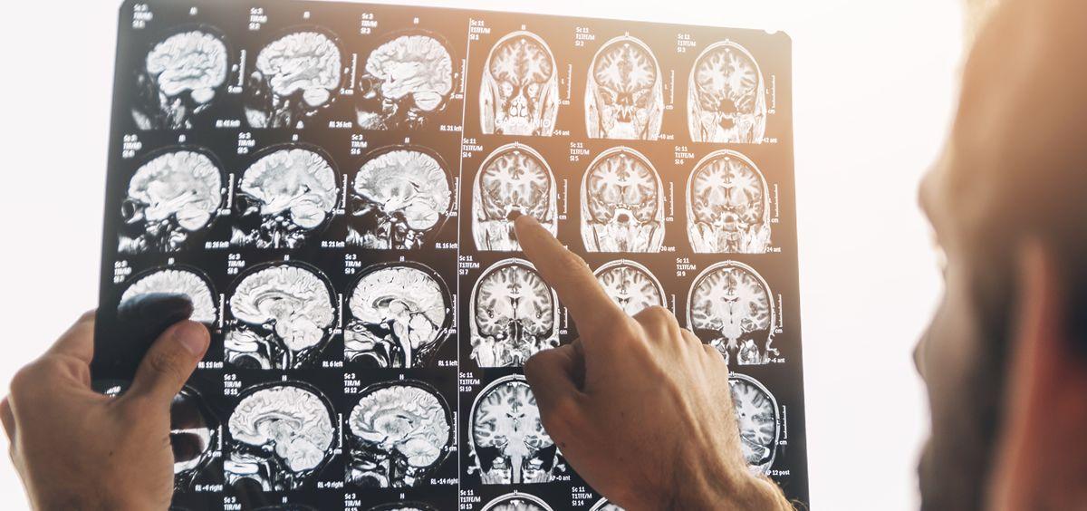 Mejores médicos neurólogos de España. (Foto: Pixabay)