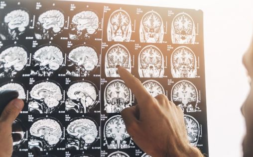 ¿Quiénes son los mejores médicos neurólogos de España?