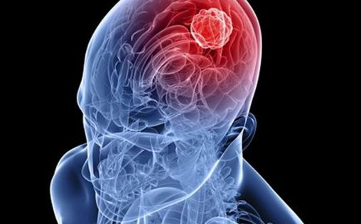 Nanopartículas para mejorar el transporte de medicamentos al tumor cerebral