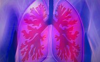 ESMO ha actualizado sus Guías de Práctica Clínica y recomienda a nintedanib más docetaxel después de una primera línea de tratamiento en cáncer de pulmón avanzado
