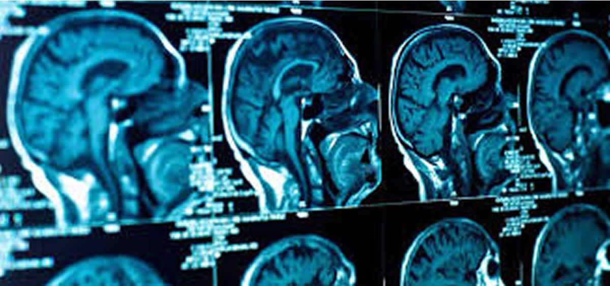 La encefalitis conlleva una inflamación del sistema nervioso central (Foto. ConSalud)