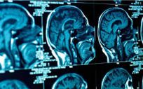 La encefalitis conlleva una inflamación del sistema nervioso central