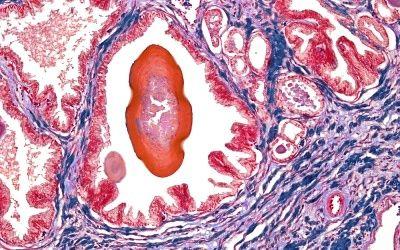 El fármaco 'Cialis' (Lilly) y finasterida mejoran los síntomas del tracto urinario inferior por hiperplasia benigna de próstata