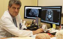 El doctor Roberto Martínez, jefe de la Unidad de Neurocirugía Funcional del Hospital Ruber Internacional