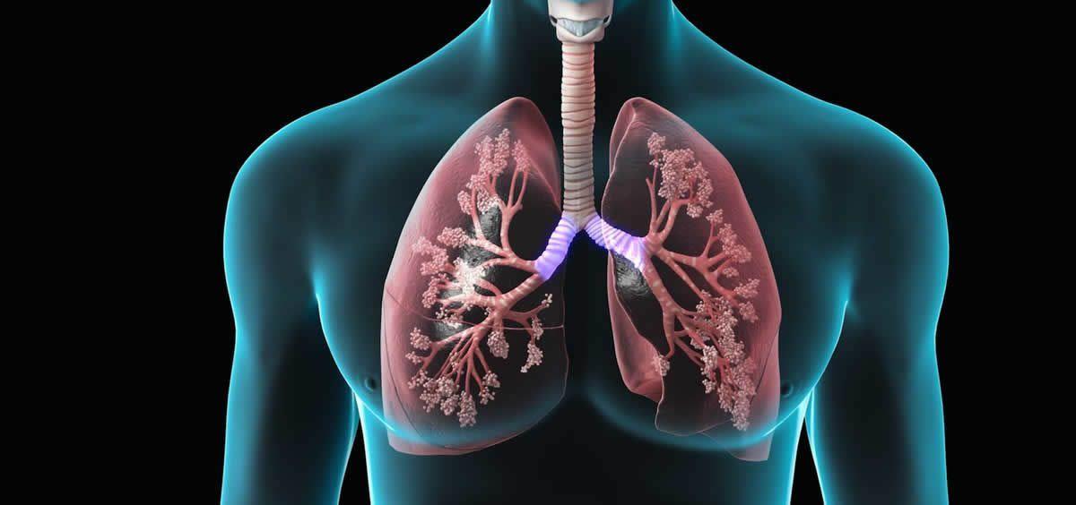 Los profesionales sanitarios deben disponer de los conocimientos necesarios para tratar el asma leve, conocer las opciones de tratamiento para el asma grave y las alternativas terapéuticas al asma alérgico