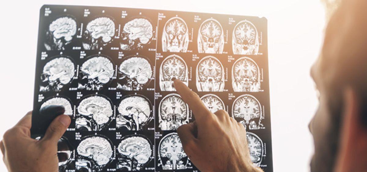 La epilepsia es una enfermedad neurológica caracterizada por la predisposición del cerebro a generar crisis epilépticas
