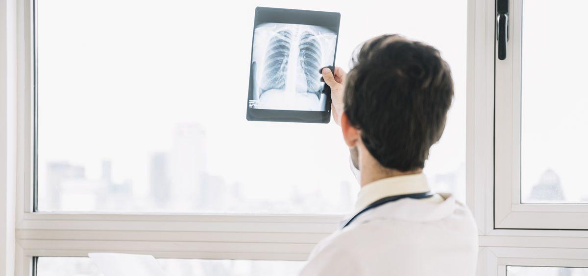 En España, la Fibrosis Pulmonar Idiopática (FPI) afecta a entre 7.500 y 10.000 personas (Foto. ConSalud)